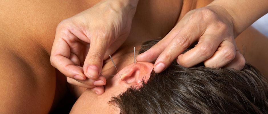 Akupunktur in Braunschweig